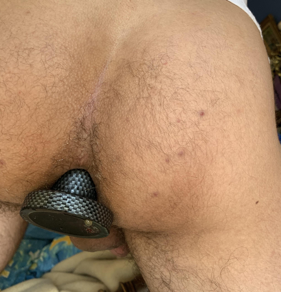 Leaking from my warm up plug what should I take next?   Toys  Porn XXX   Hot XXX Gays